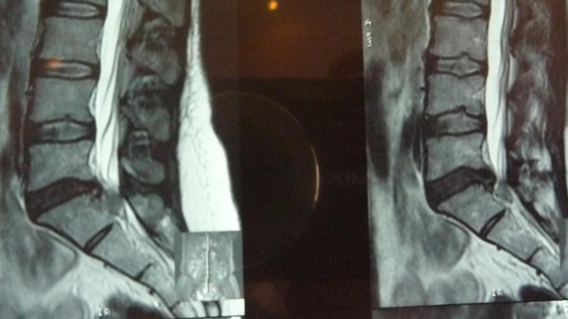 Тюмень лечение грыжи позвоночника